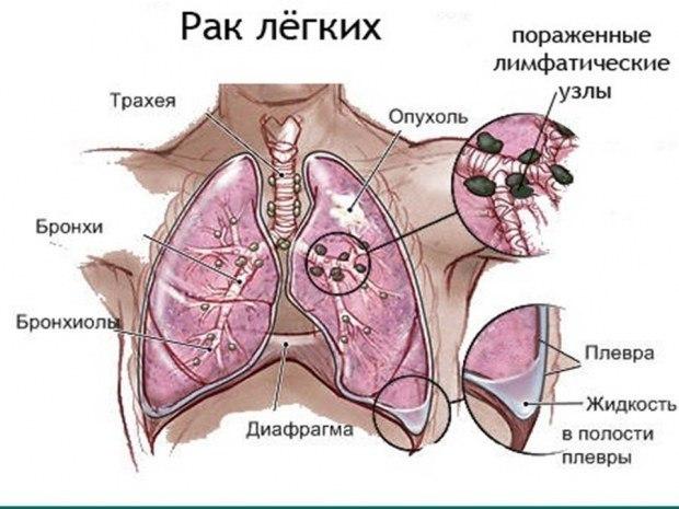 Про больного раком